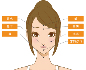 アリシアクリニックの顔脱毛範囲